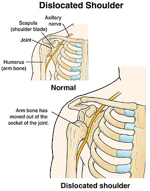 Anatomy of a Dislocated Shoulder.